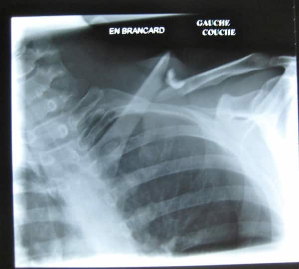 Fracture de la clavicule  radio